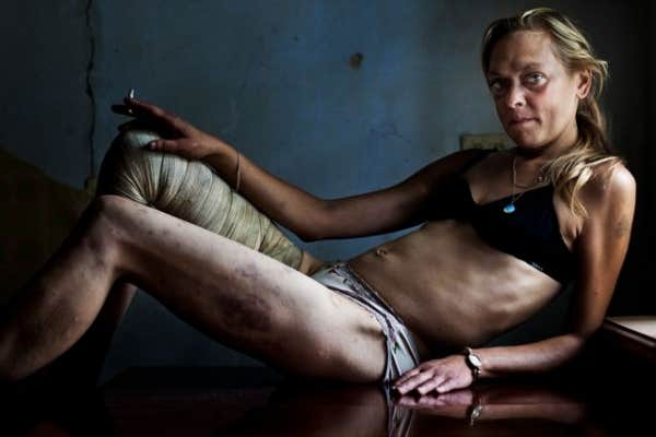 Brent Stirton, Afrique du Sud, reportage de Getty Images pour Kyiv Post/The Sunday Times Magazine. Maria, droguée et prostituée, Kryvyi Rig, Ukraine.