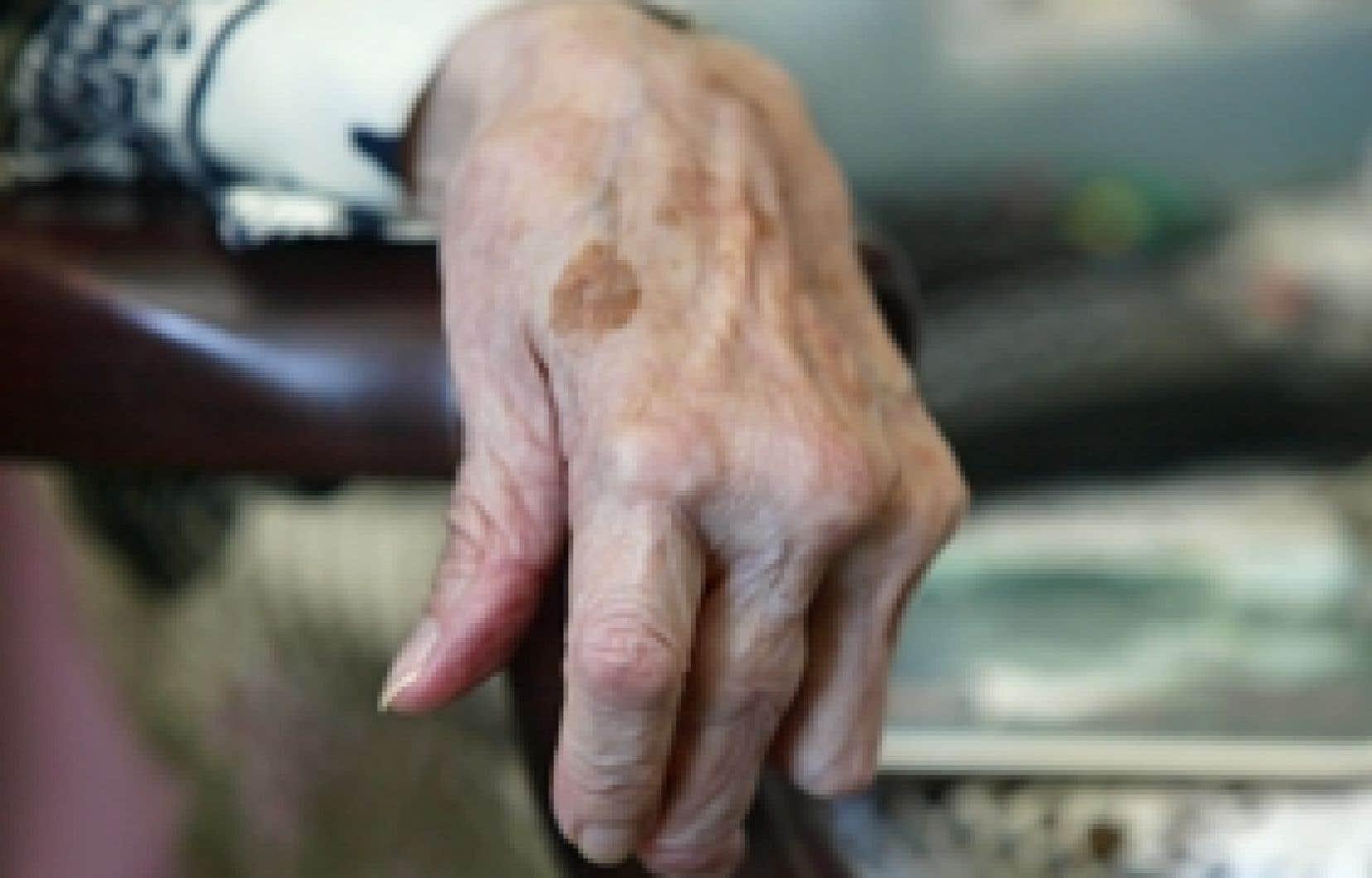 L'arthrite se déclare lorsque la personne ressent de façon inhabituelle et nouvelle des gonflements articulaires soutenus et des douleurs persistantes, le plus souvent aux extrémités, aux poignets, aux doigts et aux pieds.