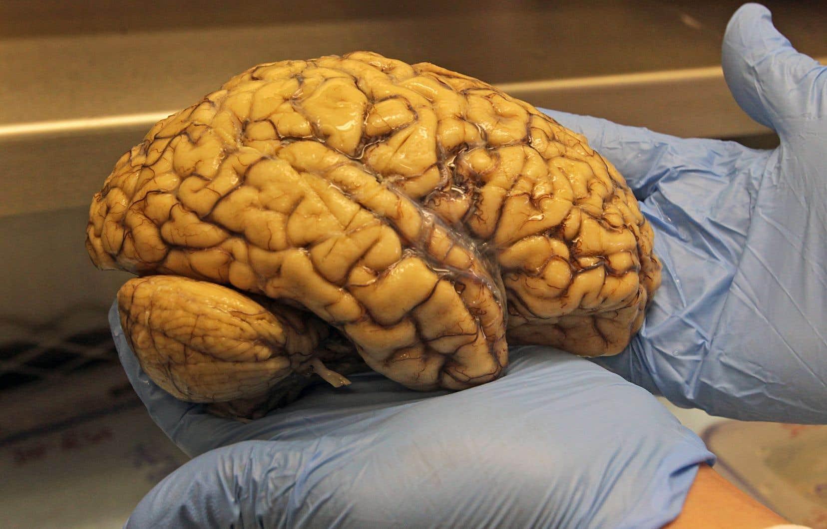 Depuis 20 ans, les recherches pour trouver un médicament pour traiter l'alzheimer ont été infructueuses jusqu'à présent.