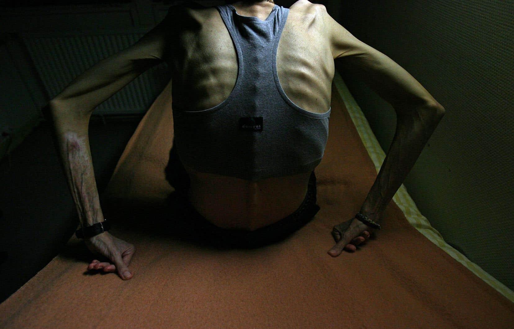Les chercheurs ont observé que plus les patientes souffraient d'anorexie nerveuse depuis longtemps, plus ces altérations de la méthylation de l'ADN étaient abondantes.