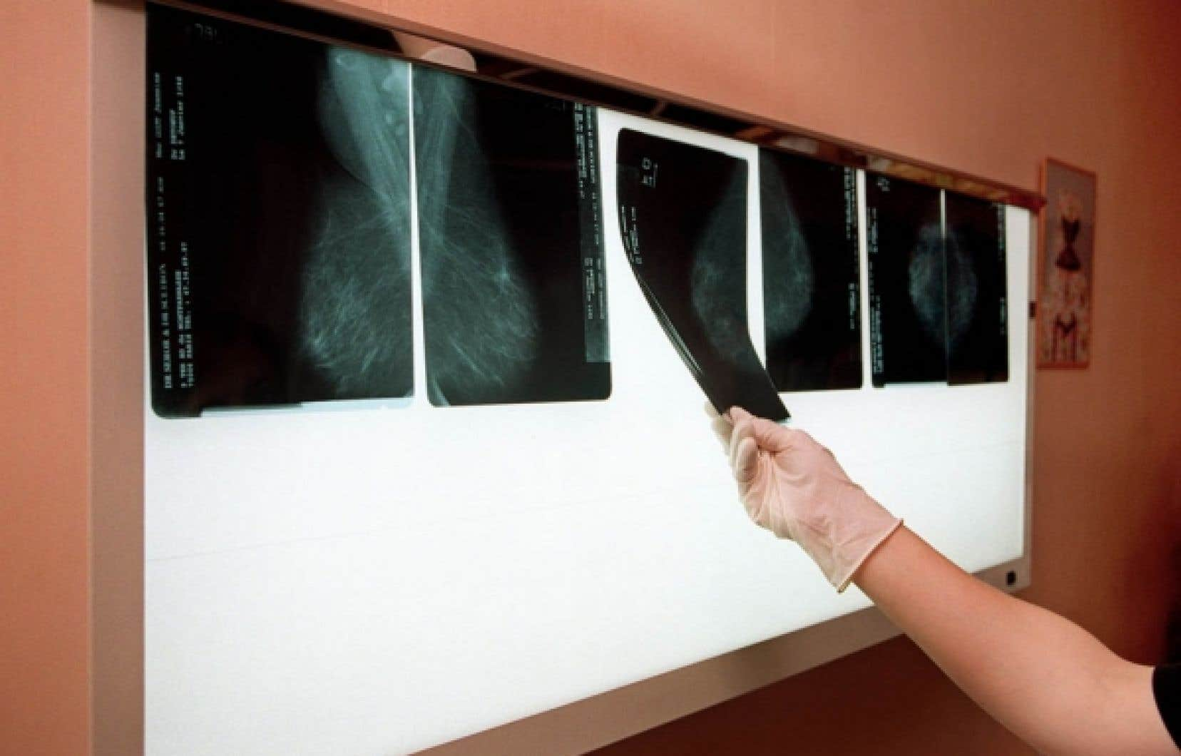 Un médecin examine les radiographies du sein d'une patiente afin de détecter un éventuel cancer.