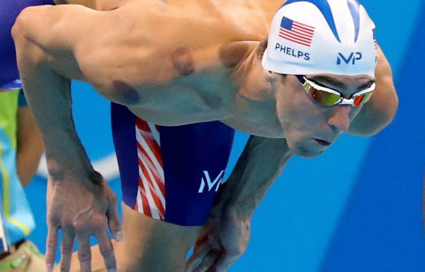 Très remarquées sur les épaules de Michael Phelps aux Jeux olympiques de Rio, les marques rouges aux allures de gros suçons résultent du cupping.