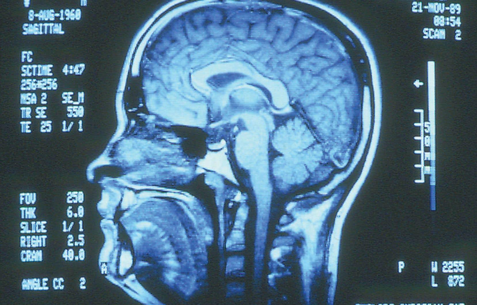 Les chercheurs tentent de découvrir comment un cerveau sain se développe et comment il se transforme quand apparaît une maladie.