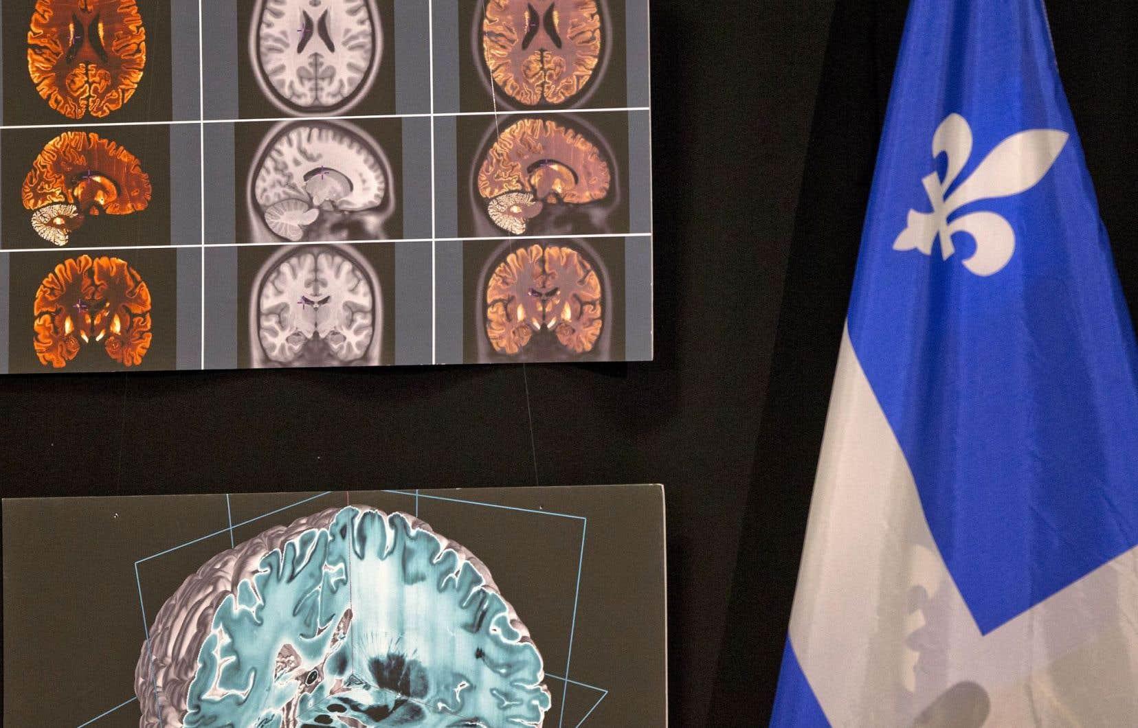 Le logiciel calcule ses prédictions à partir des données fournies par une imagerie du cerveau.