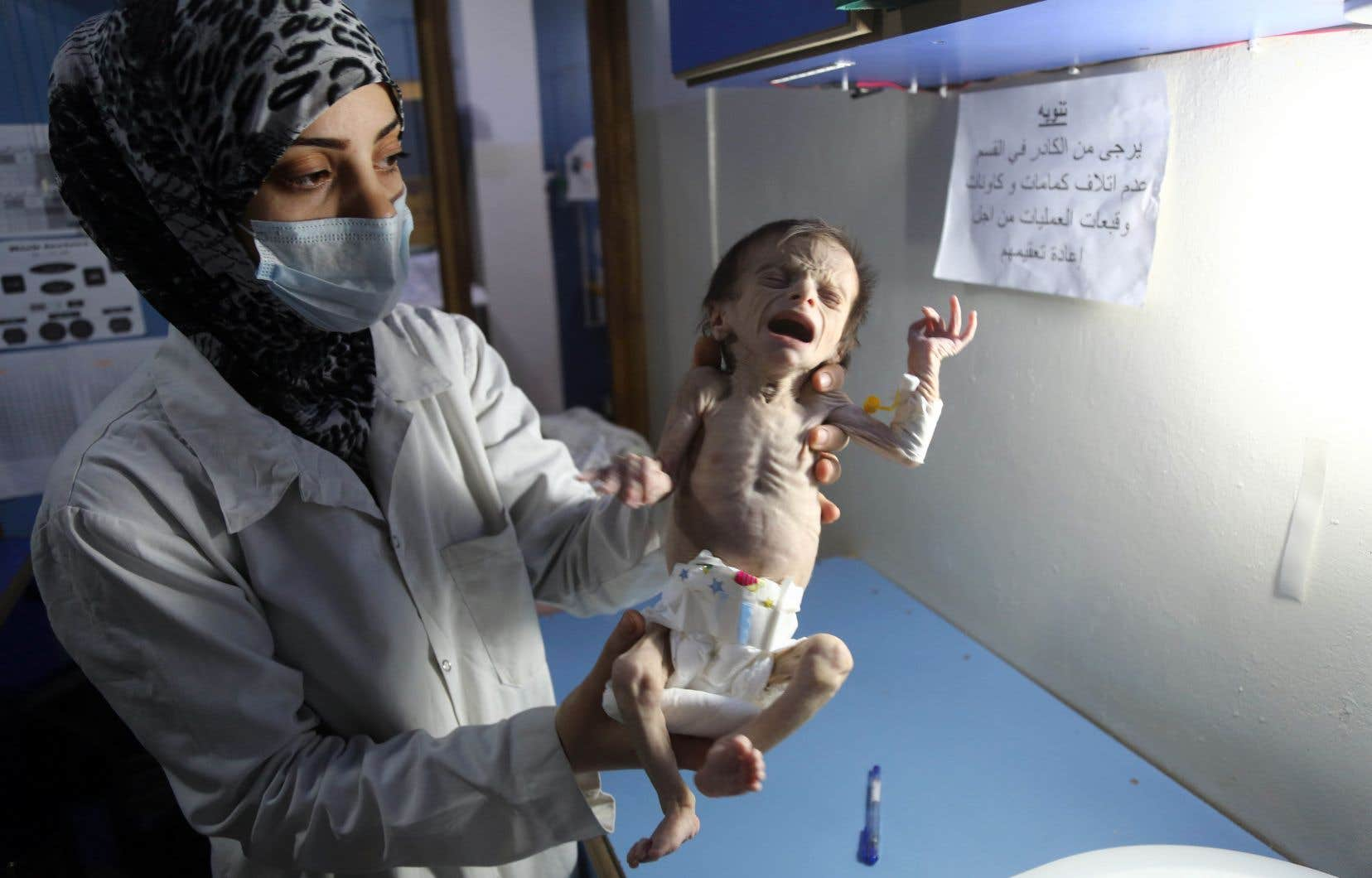 Un nourrisson syrien souffrant de malnutrition sévère est porté par une infirmière dans une clinique de la ville rebelle de Hamouria, dans la région orientale de la Ghouta, à la périphérie de la capitale Damas, le 21 octobre 2017.
