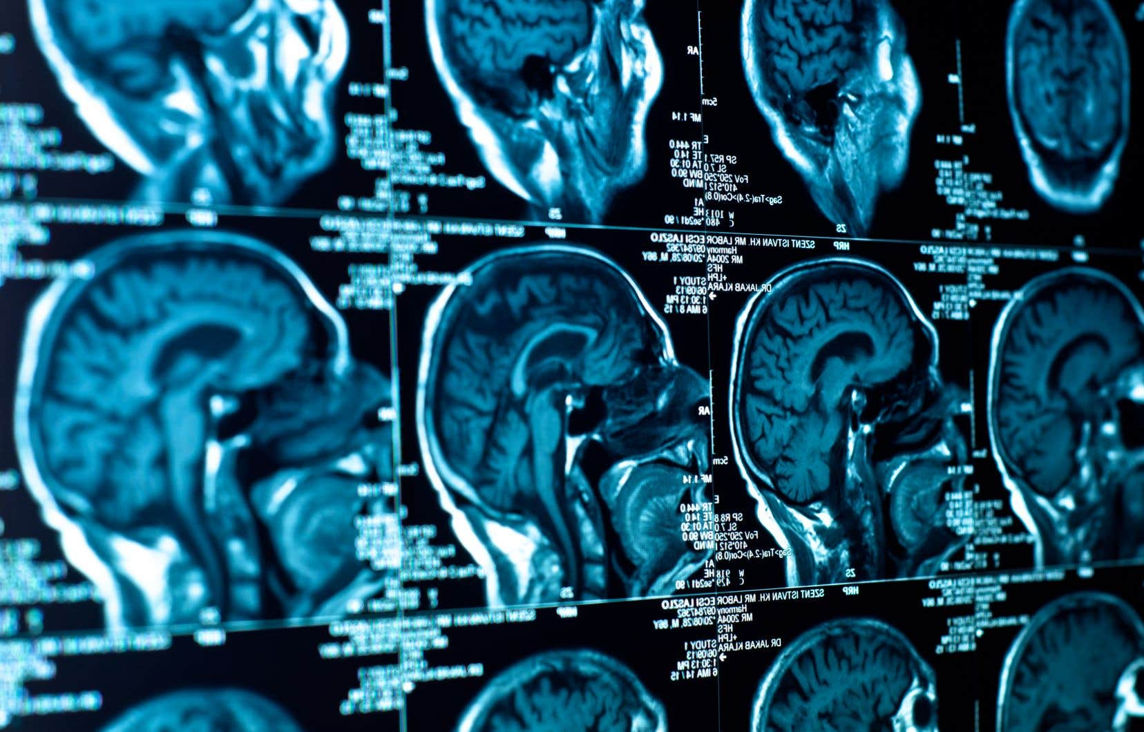Dans le but de mettre au point une technologie capable de produire un discours plus fluide, les chercheurs se sont intéressés à l'activité du cerveau lorsque les personnes parlent.