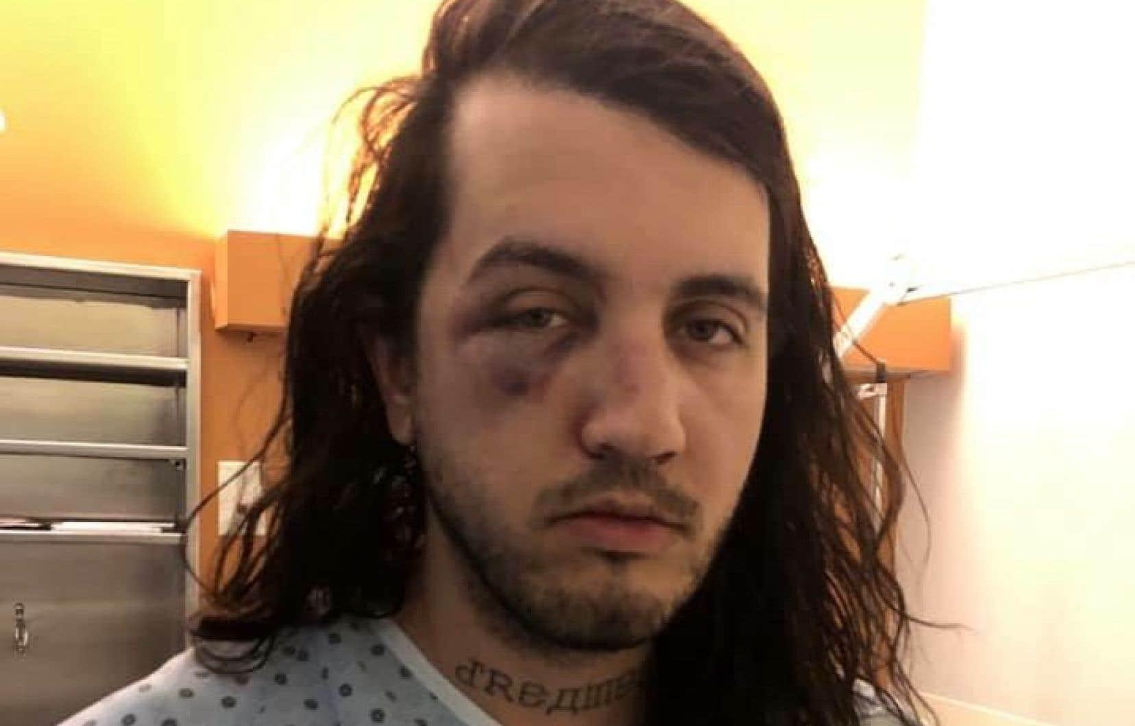 Sur Facebook, le designer Markantoine a publié une image où il apparaît en jaquette d'hôpital, le visage tuméfié, samedi.