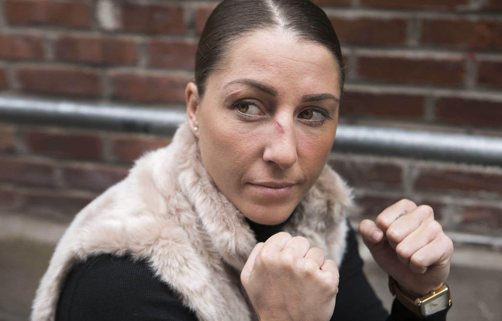 La boxeuse Kim Clavel a deux blessures au visage à la suite d'un combat.
