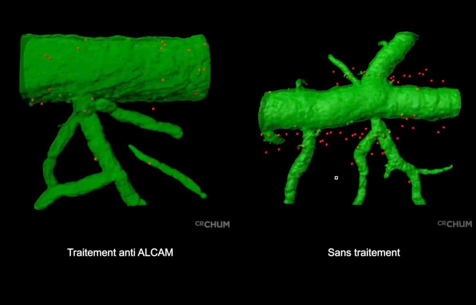 La molécule ALCAM (Activated Leukocyte Cell Adhesion Molecule)est une molécule d'adhérence qui ressemble à une petite branche de velcro que les cellules du système immunitaire, en l'occurrence les lymphocytes B, utilisent pour pénétrer dans un organe du corps en réponse à une infection ou une agression.