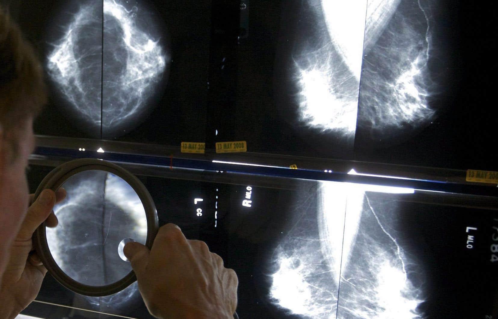 Les centres de dépistage peuvent recommencer dès maintenant à procéder aux mammographies de dépistage.
