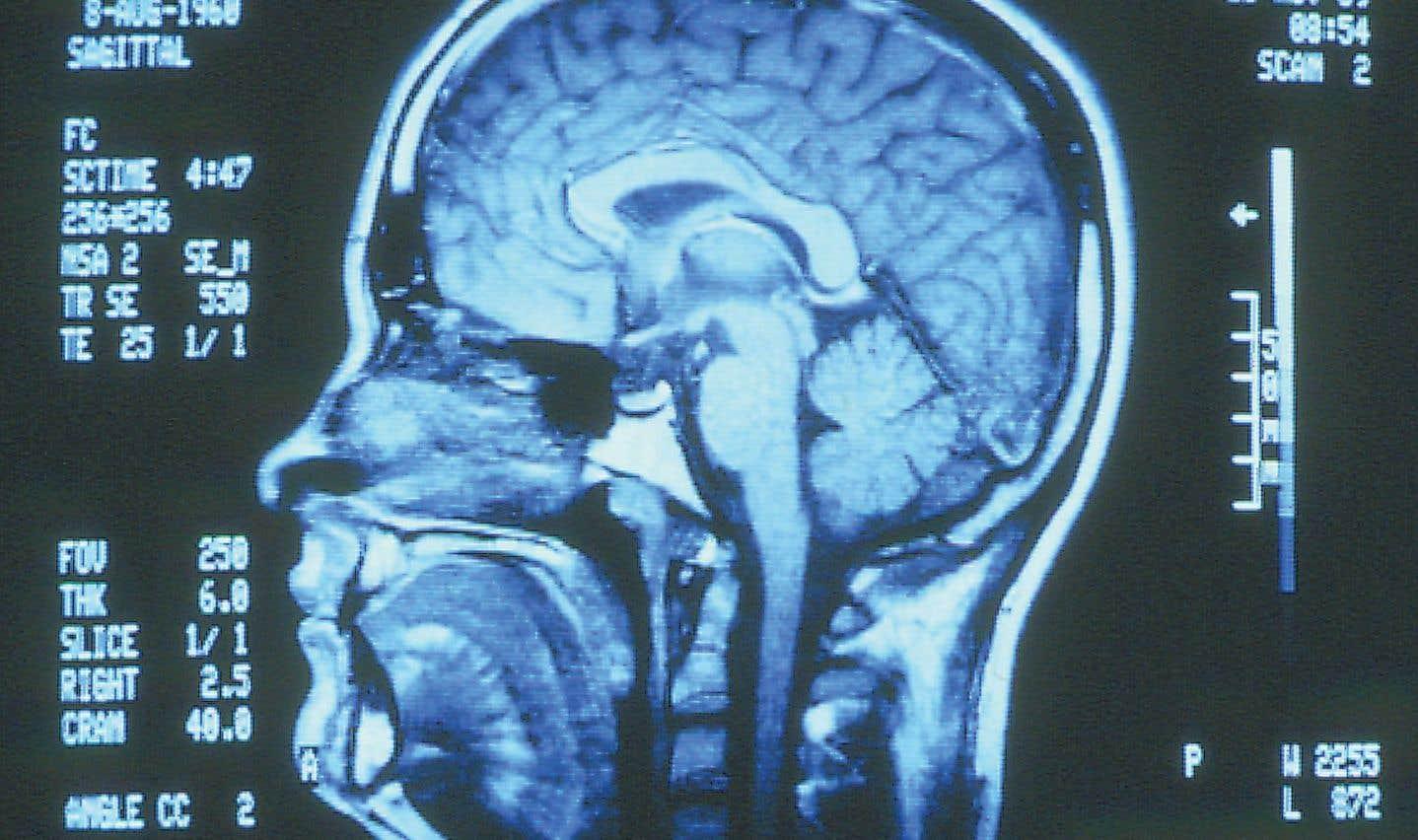 Fenêtre sur le cerveau