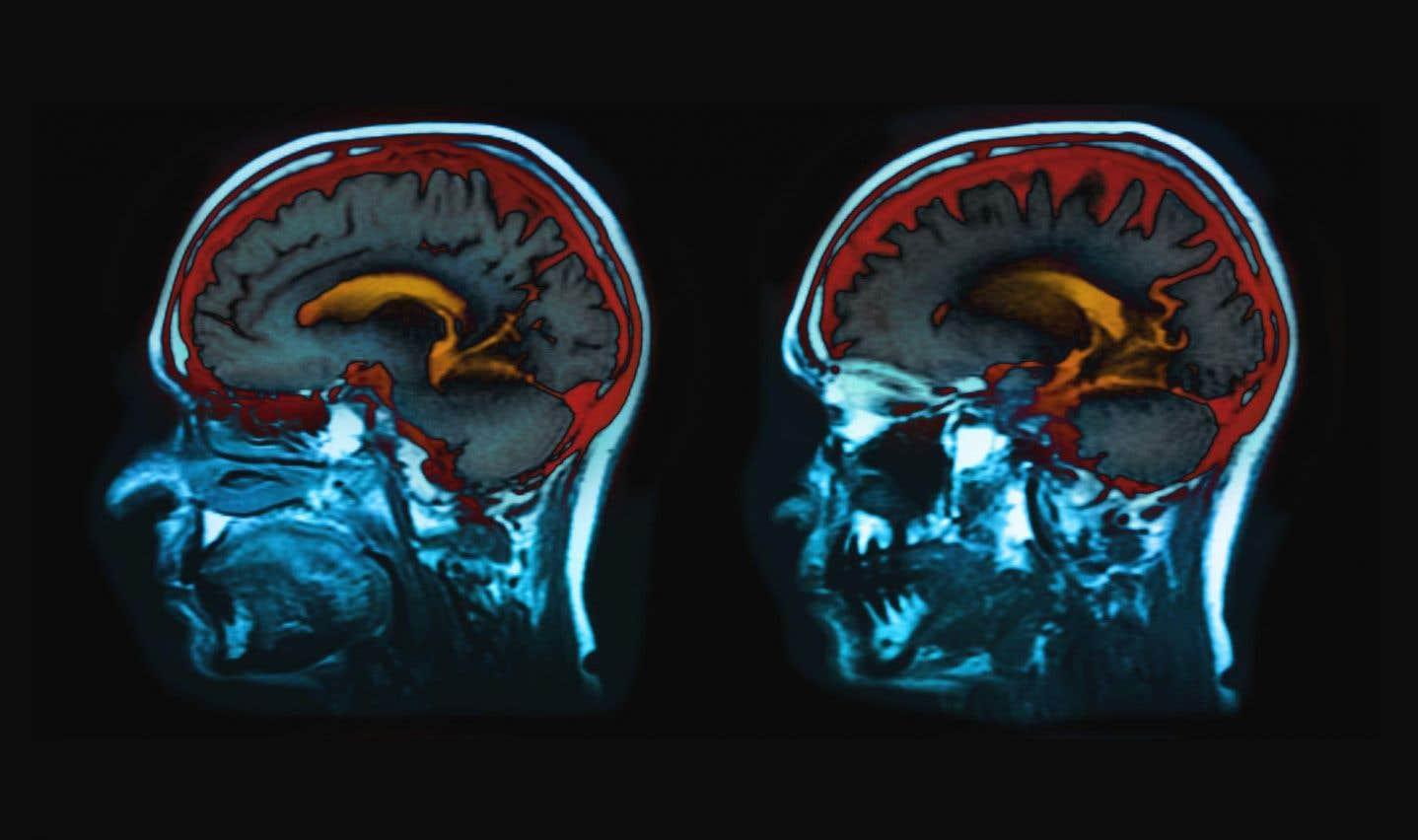 «C'est le cerveau qui mène le bal! C'est à lui qu'on doit notre humeur, notre concentration, notre créativité et notre confiance en nous-mêmes», explique le psychiatre américain Drew Ramsey de l'Université Columbia.